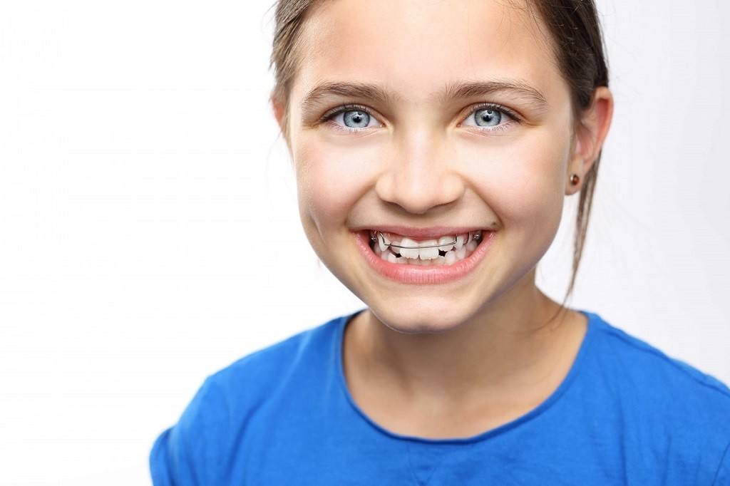 Ortodoncia interceptiva para niños