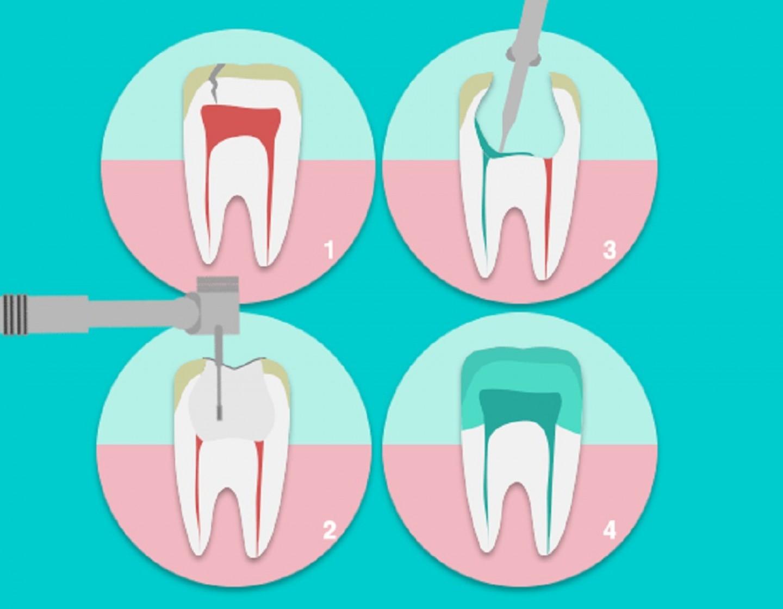 clínica dental en Vic