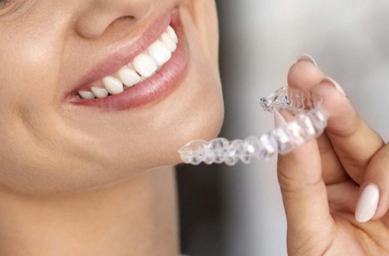La revolución de la ortodoncia